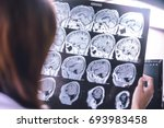 frontal lobe atrophy on mri... | Shutterstock . vector #693983458