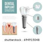 dental implant structure... | Shutterstock . vector #694915048