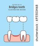 bridges teeth illustration... | Shutterstock .eps vector #695503468
