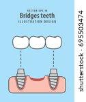 bridges teeth illustration... | Shutterstock .eps vector #695503474