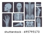 realistic x ray shots... | Shutterstock .eps vector #695795173