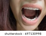 Small photo of bad breath, mouth odor - sign of illness