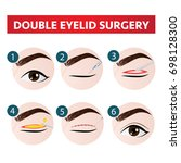 double eyelid surgery steps... | Shutterstock .eps vector #698128300