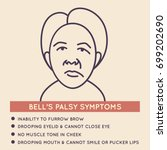 bell's palsy vector icon... | Shutterstock .eps vector #699202690