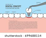 layout implant teeth cartoon... | Shutterstock .eps vector #699688114