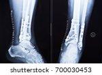 leg fracture  surgical fixation ... | Shutterstock . vector #700030453