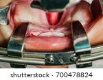 Small photo of Cleft lip and palate surgery in operating room