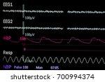 inspect vital signs data screen ... | Shutterstock . vector #700994374