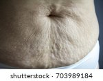picture of belly after giving... | Shutterstock . vector #703989184