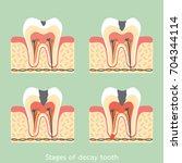 dental cartoon vector flat...   Shutterstock .eps vector #704344114