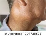 Small photo of Zooming closeup lateral view of enlarged lymph nodes and submandibular gland on right side of neck in a middle aged Asian male comes with history of chronic slow progressive neck lump and pain.
