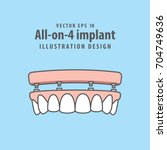 all on 4 implant illustration... | Shutterstock .eps vector #704749636