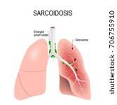 sarcoidosis. human's lungs with ...   Shutterstock .eps vector #706755910