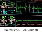 Stock photo vital sign ekg monitor 707283448
