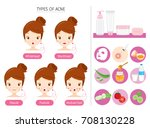 set of girl with acne on face... | Shutterstock .eps vector #708130228