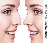 Small photo of Female nose before and after cosmetic surgery