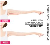 arm lift and reduction surgery... | Shutterstock .eps vector #710848576