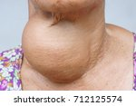 woman with enlarged... | Shutterstock . vector #712125574