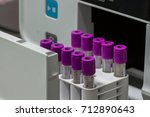 medical blood separation test... | Shutterstock . vector #712890643