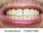 asian men have teeth dirty and... | Shutterstock . vector #713027383