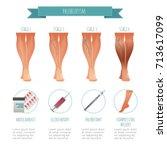 phlebology infographic ... | Shutterstock .eps vector #713617099