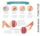 vector phlebology infographic ... | Shutterstock .eps vector #713617120