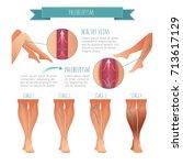 vector phlebology infographic.... | Shutterstock .eps vector #713617129