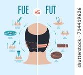fue vs fut. follicular unit... | Shutterstock .eps vector #714419626