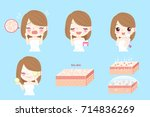 cartoon woman with skin dry... | Shutterstock .eps vector #714836269