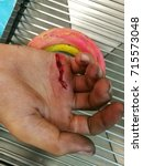 Small photo of laceration wound at right hand, emergency room