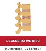 human disc degeneration.... | Shutterstock .eps vector #715578514