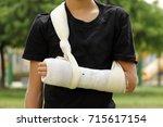 close up kid with broken arm... | Shutterstock . vector #715617154