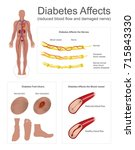 diabetes affects the nerves and ... | Shutterstock .eps vector #715843330
