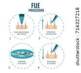 follicular unit extraction... | Shutterstock . vector #716327218