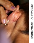 Small photo of An abscess behind the ear. Inflamed red pimple.