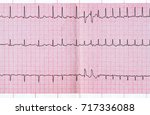 Small photo of Emergency cardiology. ECG with supraventricular extrasystole and short paroxysm of atrial fibrillation