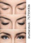eyelash removal procedure... | Shutterstock . vector #717554536