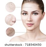 zoom circle shows facial skin... | Shutterstock . vector #718540450