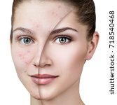 young woman with acne before... | Shutterstock . vector #718540468