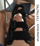 Small photo of ACL reconstruction