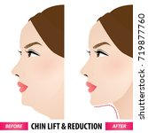 double chin lift and reduction... | Shutterstock .eps vector #719877760