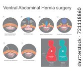 ventral hernia is a bulge of... | Shutterstock .eps vector #721118860