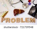 liver problems concept photo.... | Shutterstock . vector #721739548