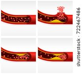 artery section with cholesterol ...   Shutterstock .eps vector #722467486