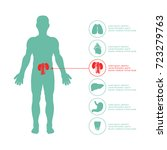 medical infographic set. vector ... | Shutterstock .eps vector #723279763