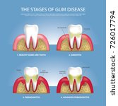 human teeth stages of gum... | Shutterstock .eps vector #726017794