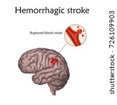 hemorrhagic stroke poster ... | Shutterstock .eps vector #726109903