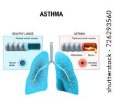 asthma is a chronic... | Shutterstock . vector #726293560