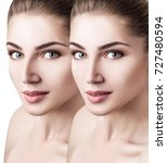 female nose before and after... | Shutterstock . vector #727480594