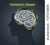 parkinson s disease vector logo ... | Shutterstock .eps vector #729376804